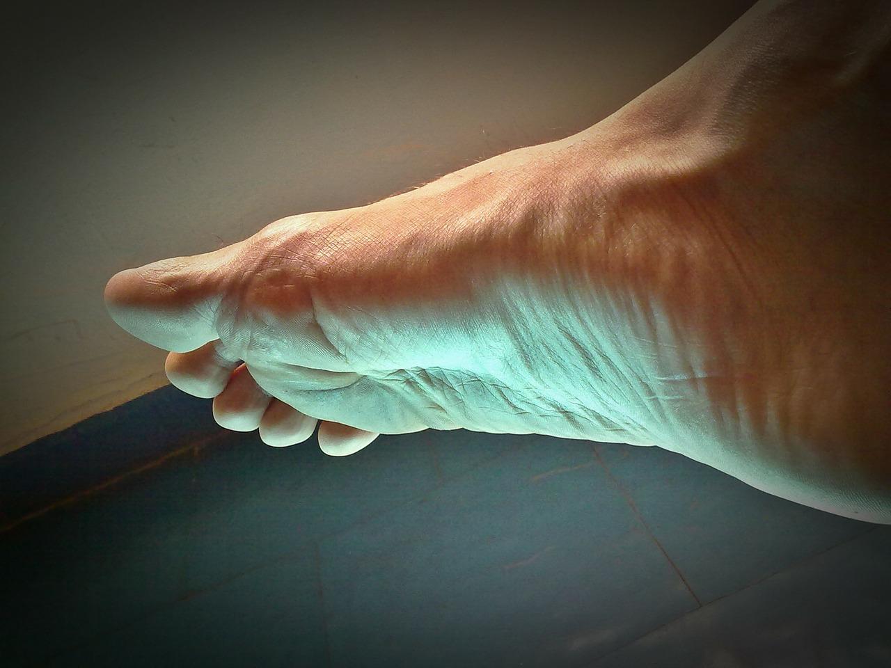 Dito a martello: correzione del piede